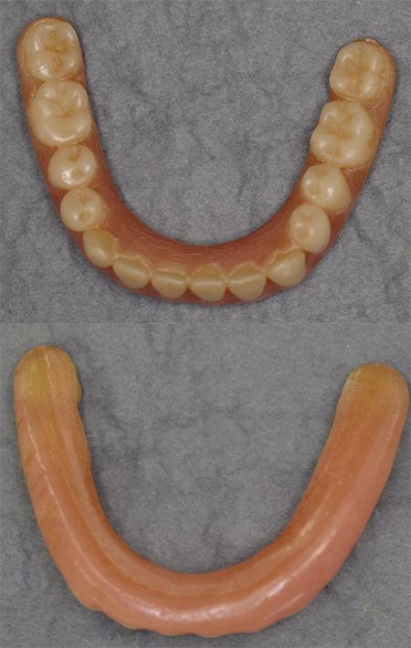 小さすぎる下顎義歯